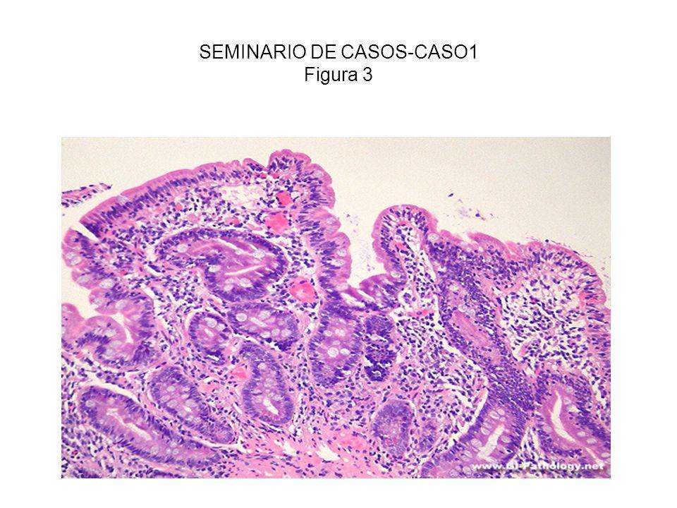SEMINARIO DE CASOS-CASO1 Figura 3