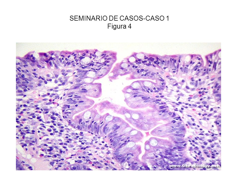 SEMINARIO DE CASOS-CASO 1 Figura 4