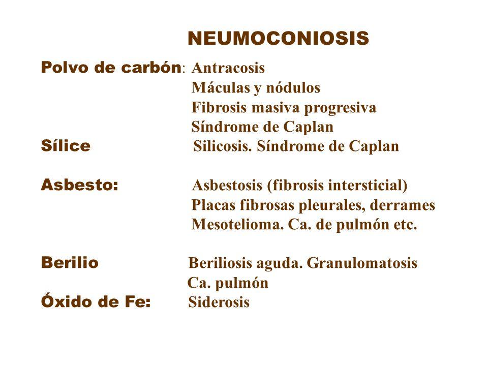 NEUMOCONIOSIS Polvo de carbón: Antracosis Máculas y nódulos