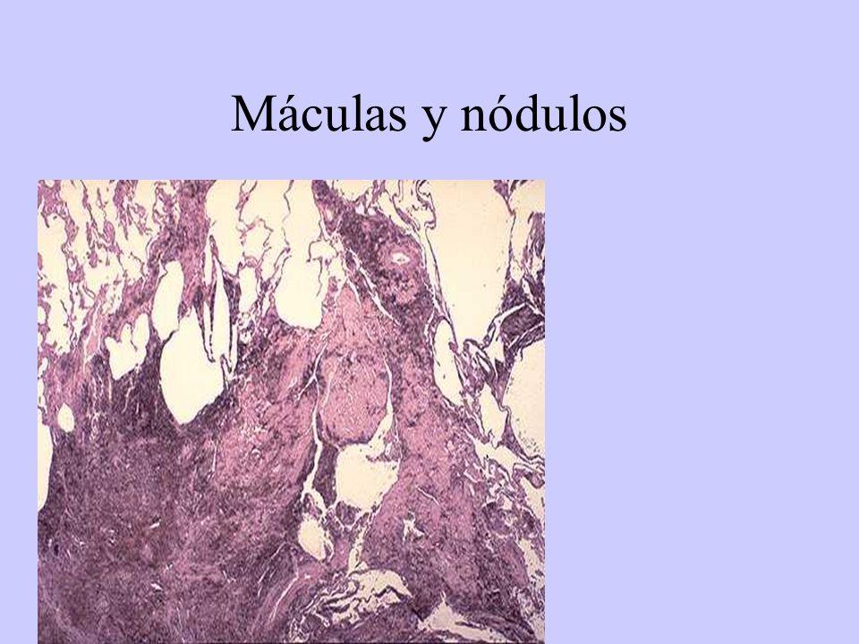 Máculas y nódulos