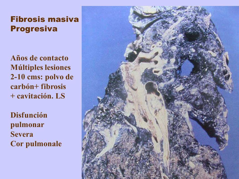 Fibrosis masiva Progresiva Años de contacto Múltiples lesiones