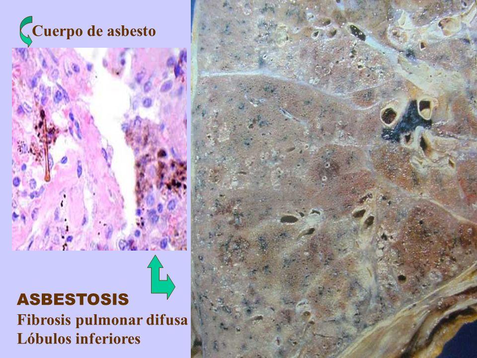 Fibrosis pulmonar difusa Lóbulos inferiores