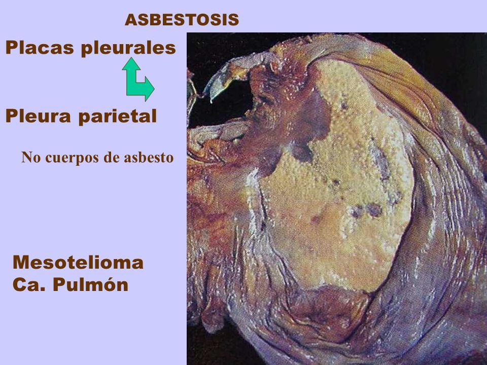 Placas pleurales Pleura parietal Mesotelioma Ca. Pulmón ASBESTOSIS