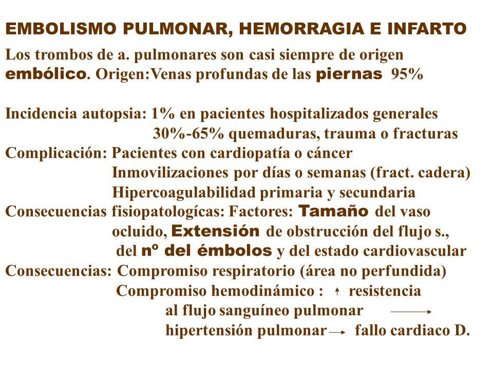 EMBOLISMO PULMONAR, HEMORRAGIA E INFARTO