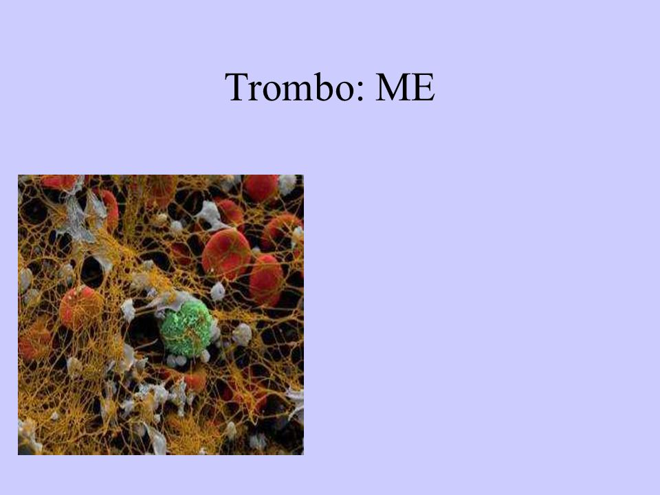 Trombo: ME