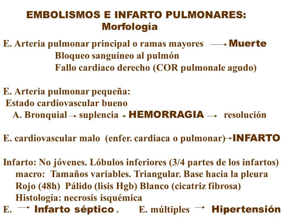 EMBOLISMOS E INFARTO PULMONARES: Morfología