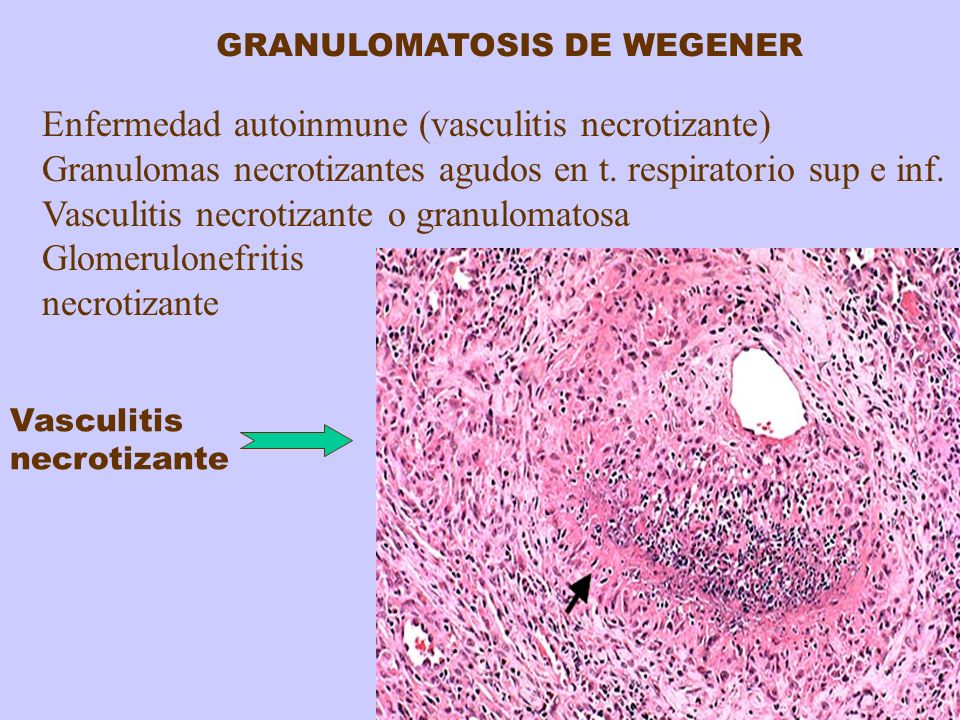 Enfermedad autoinmune (vasculitis necrotizante)