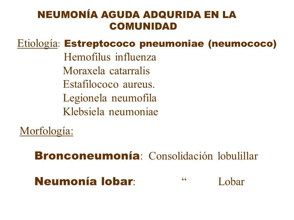 Etiología: Estreptococo pneumoniae (neumococo) Moraxela catarralis