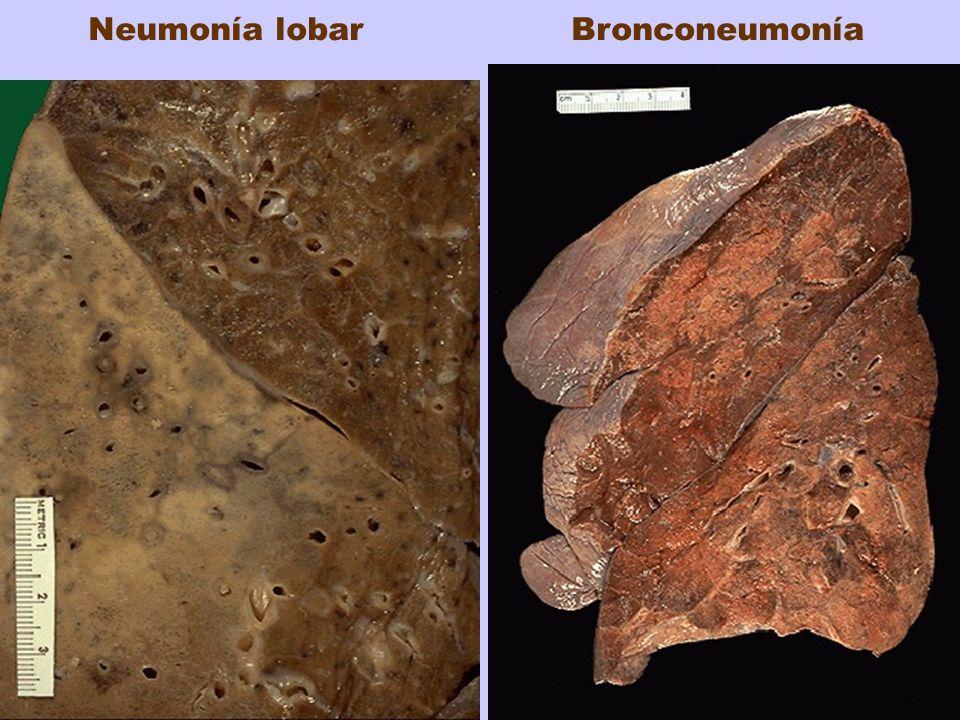 Neumonía lobar Bronconeumonía