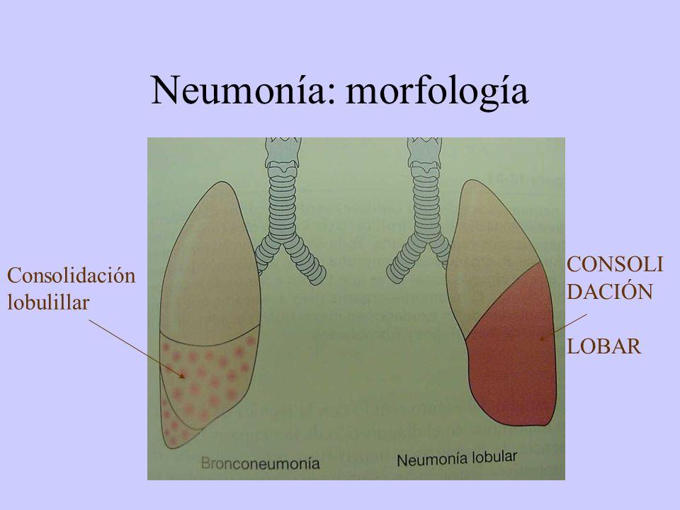Neumonía: morfología Consolidación lobulillar CONSOLIDACIÓN LOBAR