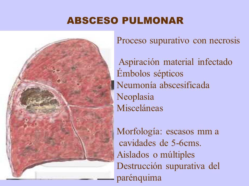 Proceso supurativo con necrosis Aspiración material infectado