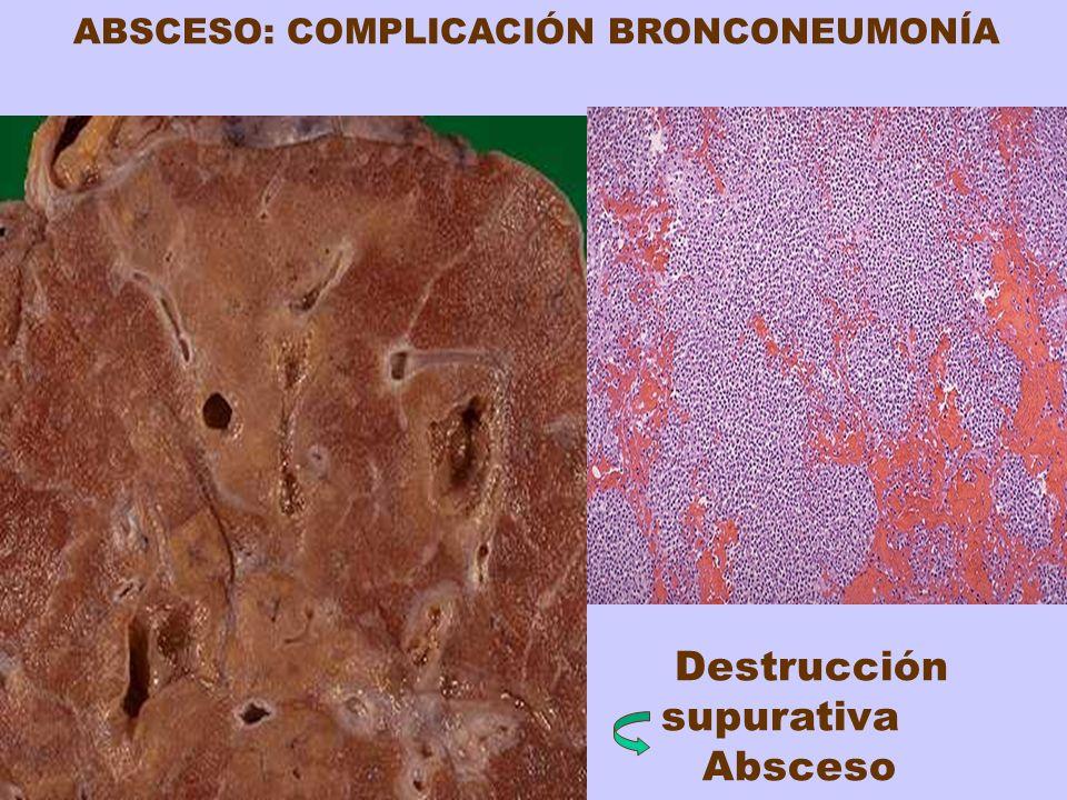 Destrucción supurativa Absceso ABSCESO: COMPLICACIÓN BRONCONEUMONÍA