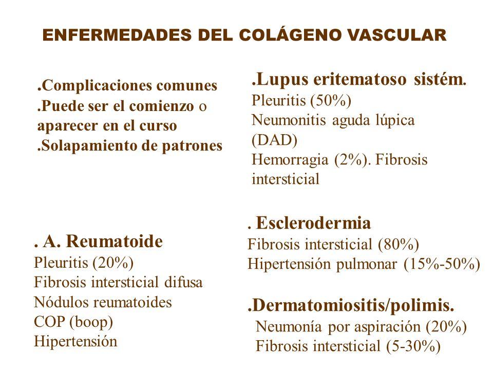.Lupus eritematoso sistém. .Complicaciones comunes
