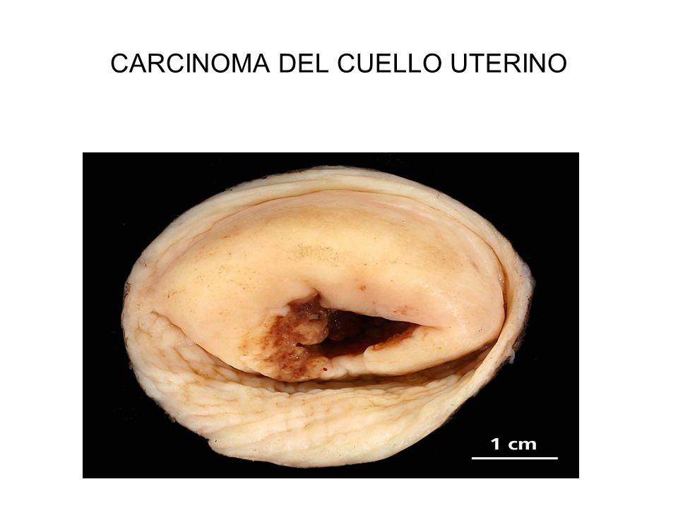 CARCINOMA DEL CUELLO UTERINO