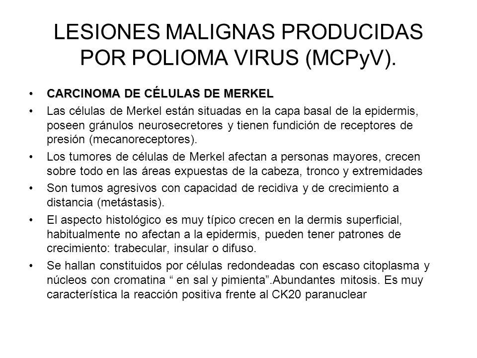 LESIONES MALIGNAS PRODUCIDAS POR POLIOMA VIRUS (MCPyV).