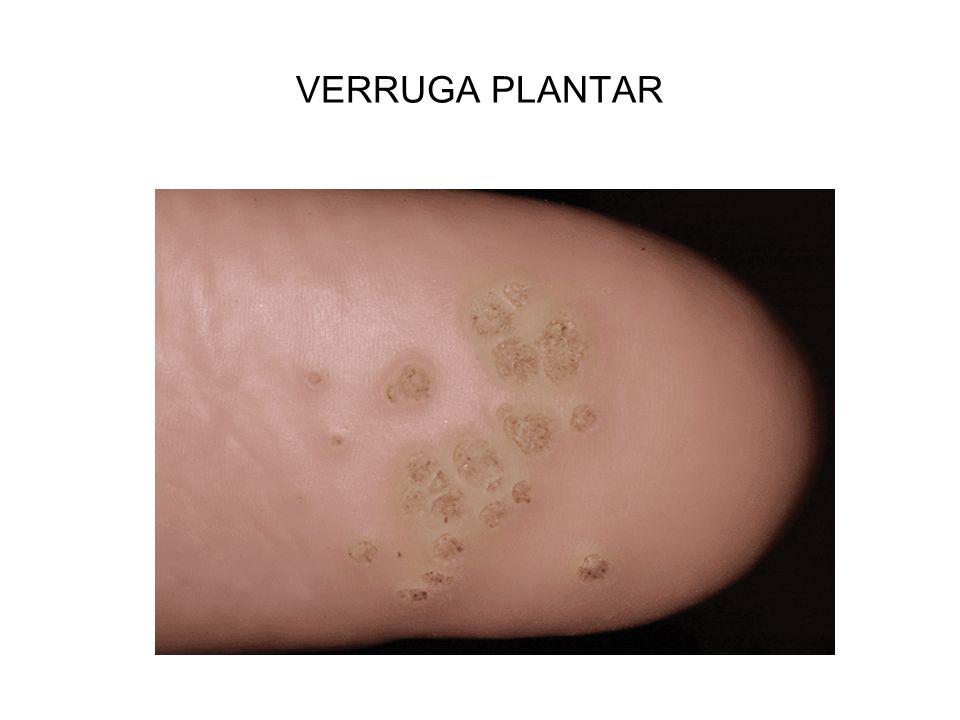 VERRUGA PLANTAR