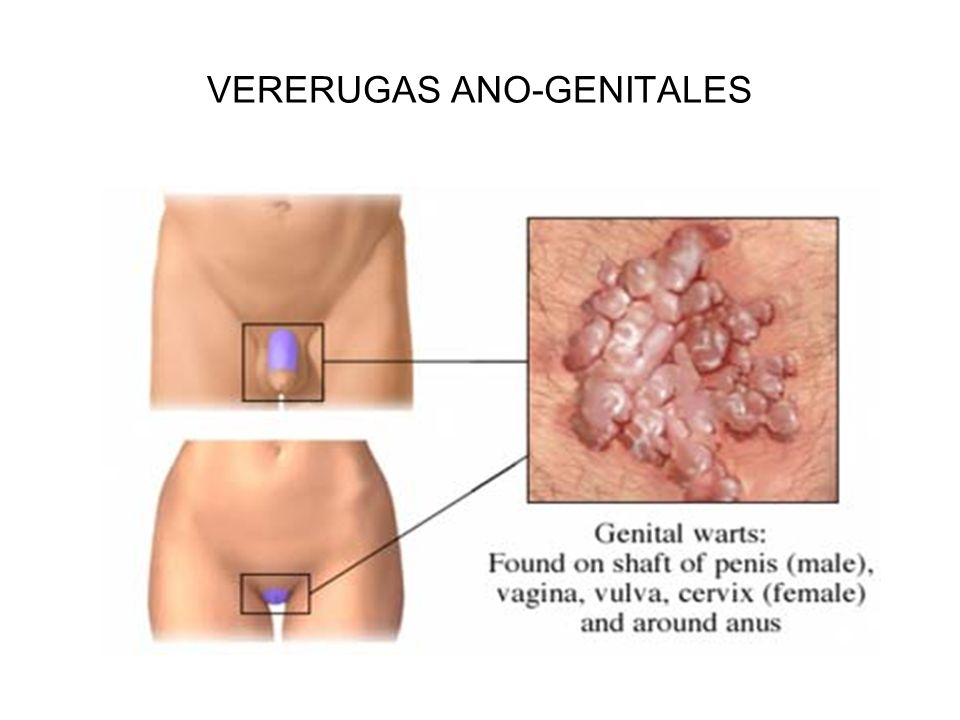 VERERUGAS ANO-GENITALES