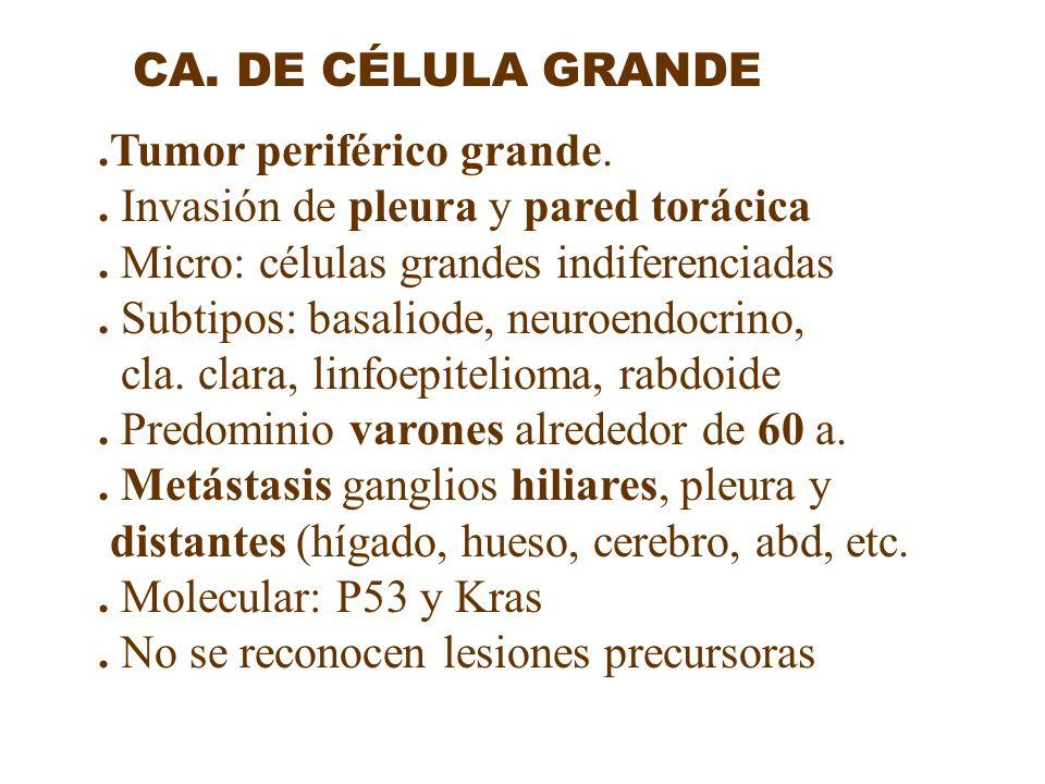 .Tumor periférico grande. . Invasión de pleura y pared torácica