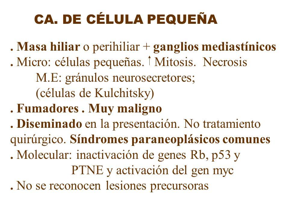 . Masa hiliar o perihiliar + ganglios mediastínicos