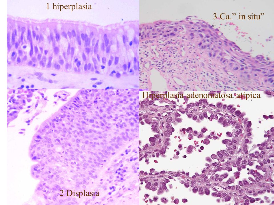 1 hiperplasia 3 Ca. in situ Hiperplasia adenomatosa atípica 2 Displasia