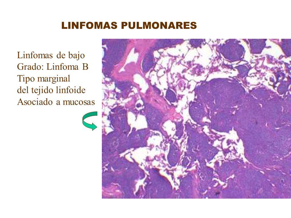 LINFOMAS PULMONARES Linfomas de bajo. Grado: Linfoma B.