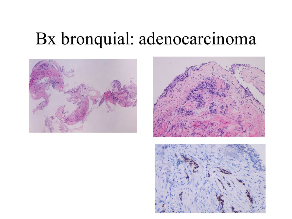 Bx bronquial: adenocarcinoma