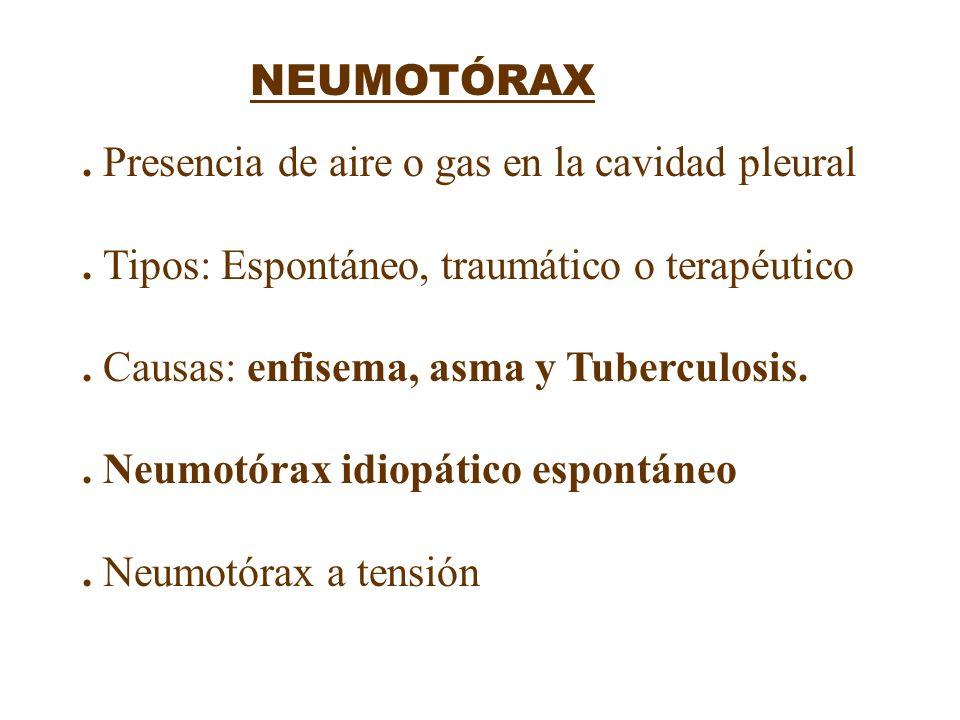 . Presencia de aire o gas en la cavidad pleural