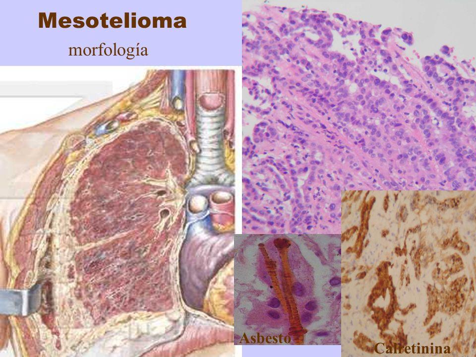 Mesotelioma morfología histología asbesto Asbesto Calretinina