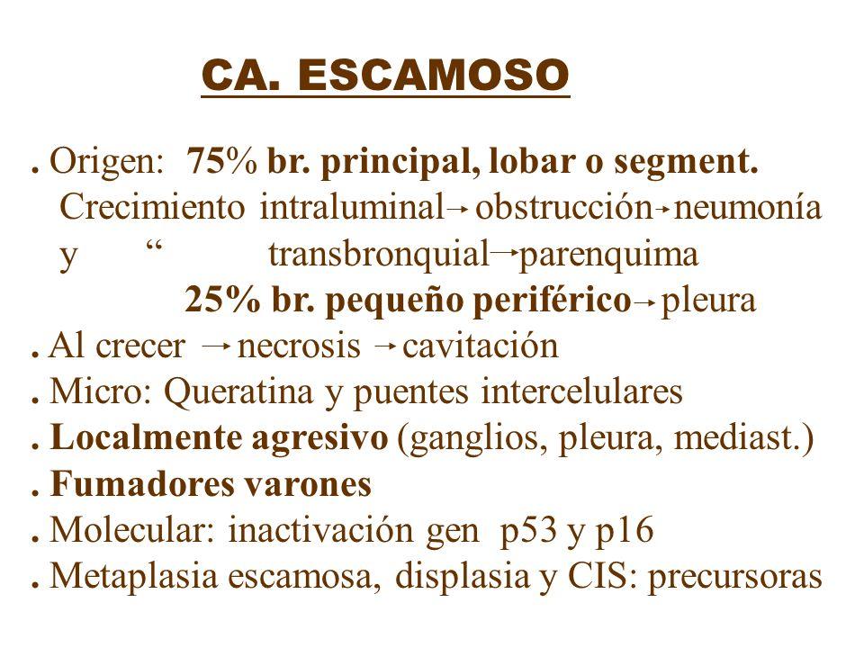 . Origen: 75% br. principal, lobar o segment.