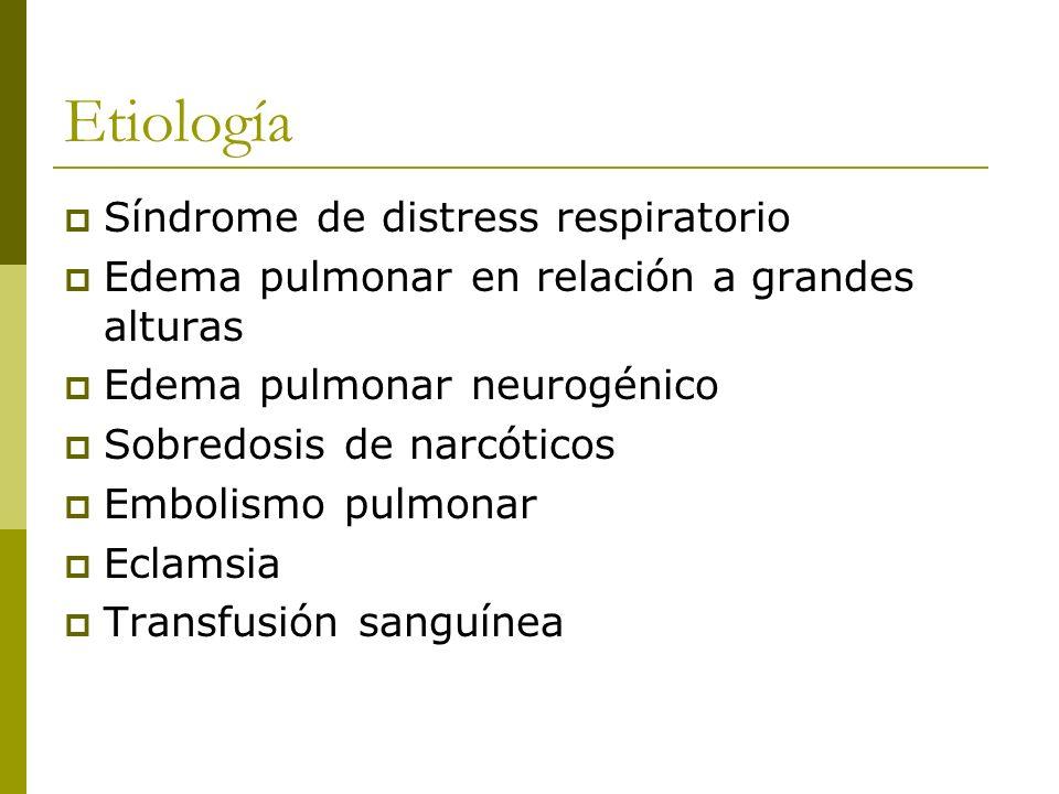 Etiología Síndrome de distress respiratorio
