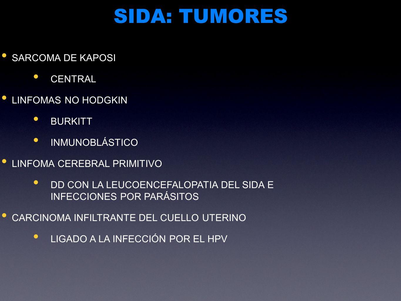 SIDA: TUMORES SARCOMA DE KAPOSI CENTRAL LINFOMAS NO HODGKIN BURKITT
