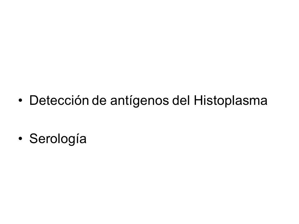 Detección de antígenos del Histoplasma