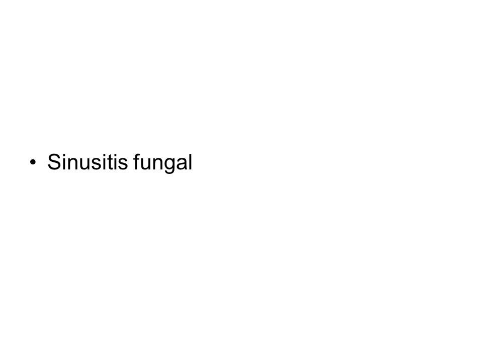 Sinusitis fungal