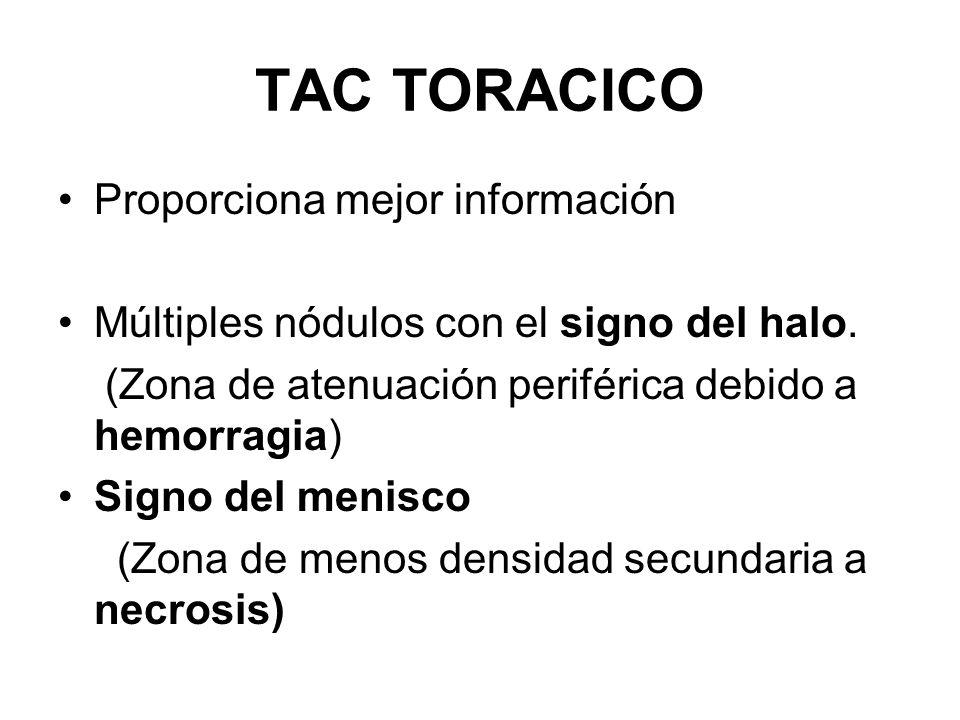 TAC TORACICO Proporciona mejor información