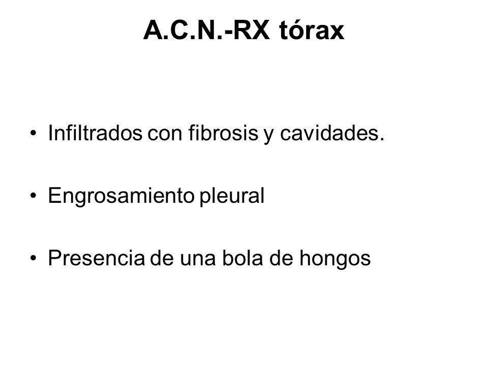 A.C.N.-RX tórax Infiltrados con fibrosis y cavidades.