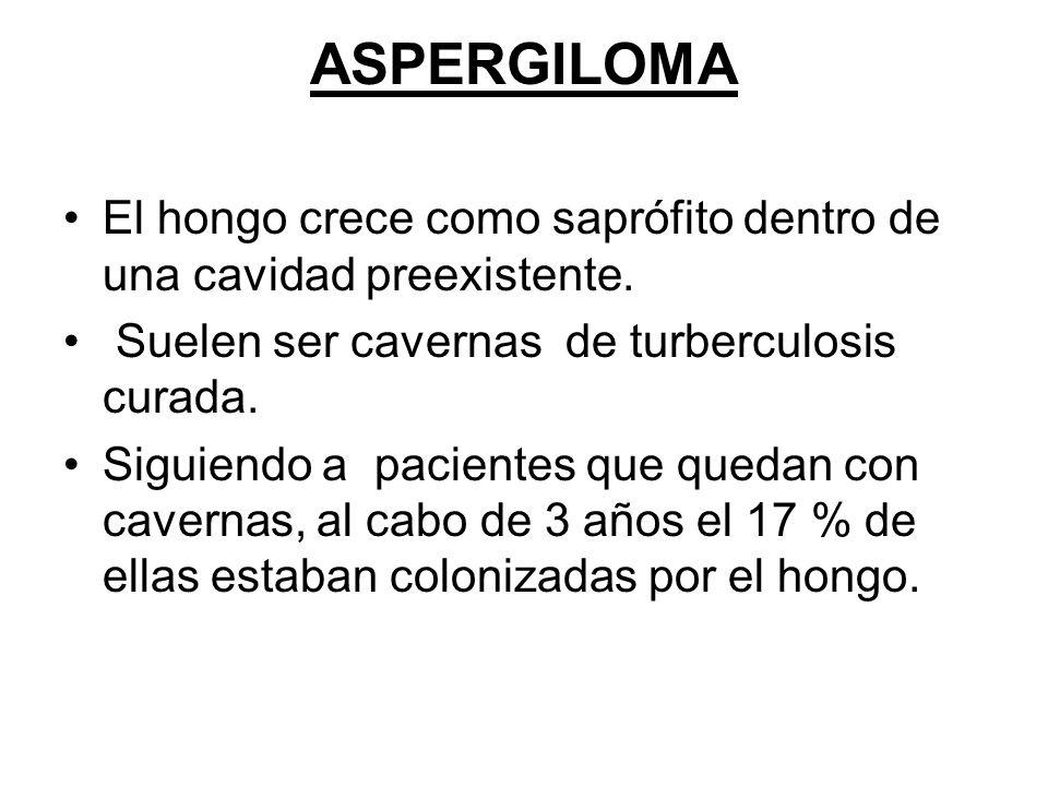 ASPERGILOMA El hongo crece como saprófito dentro de una cavidad preexistente. Suelen ser cavernas de turberculosis curada.