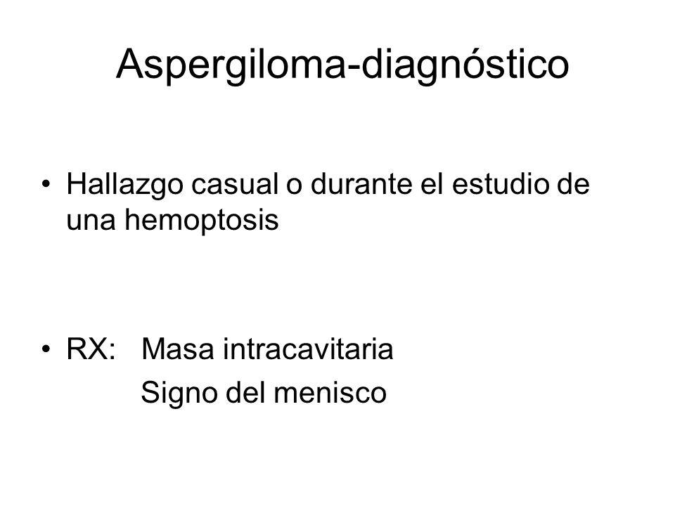 Aspergiloma-diagnóstico