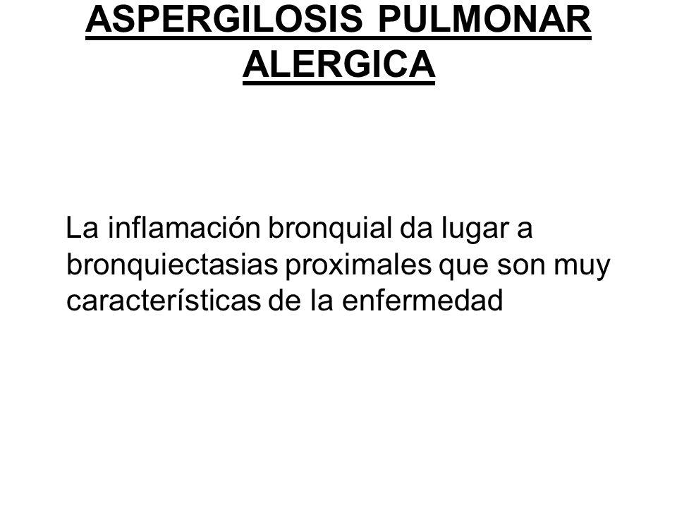ASPERGILOSIS PULMONAR ALERGICA