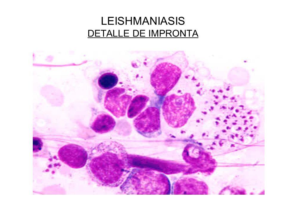 LEISHMANIASIS DETALLE DE IMPRONTA