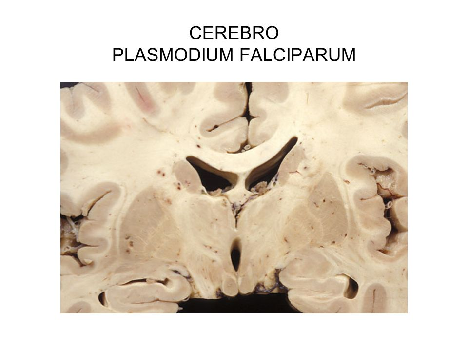 CEREBRO PLASMODIUM FALCIPARUM