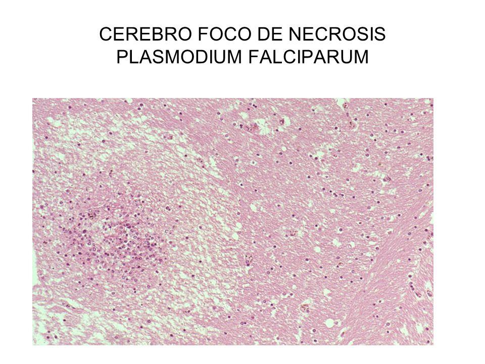 CEREBRO FOCO DE NECROSIS PLASMODIUM FALCIPARUM