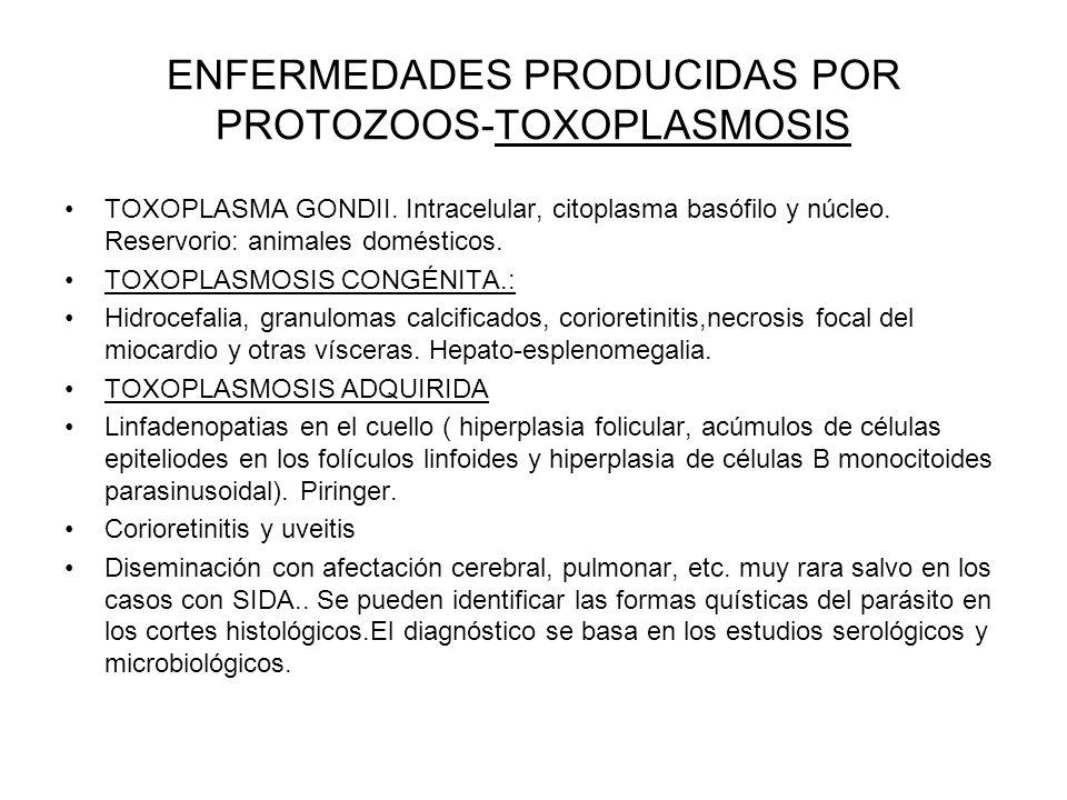 ENFERMEDADES PRODUCIDAS POR PROTOZOOS-TOXOPLASMOSIS