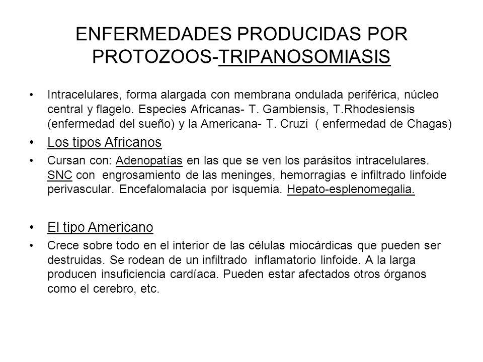 ENFERMEDADES PRODUCIDAS POR PROTOZOOS-TRIPANOSOMIASIS