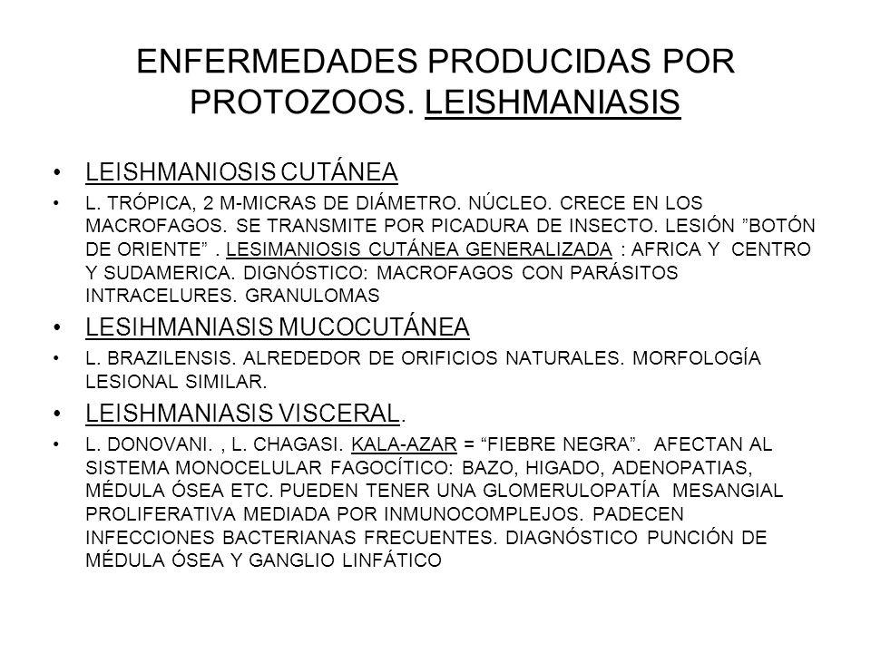 ENFERMEDADES PRODUCIDAS POR PROTOZOOS. LEISHMANIASIS