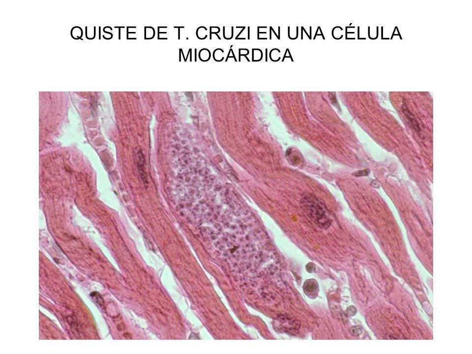 QUISTE DE T. CRUZI EN UNA CÉLULA MIOCÁRDICA