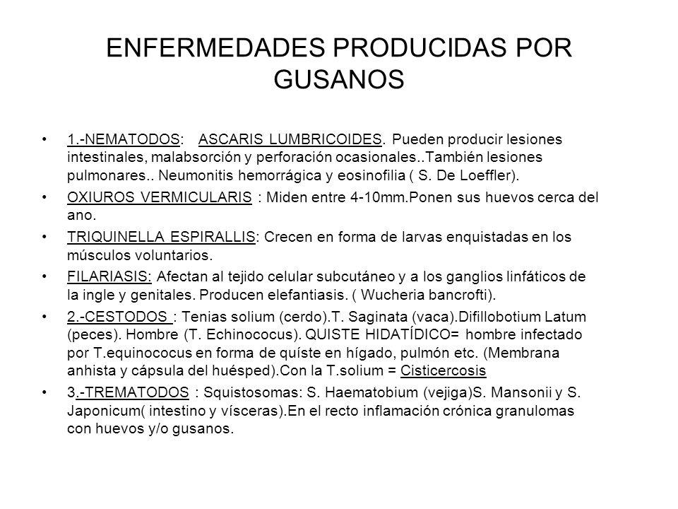 ENFERMEDADES PRODUCIDAS POR GUSANOS