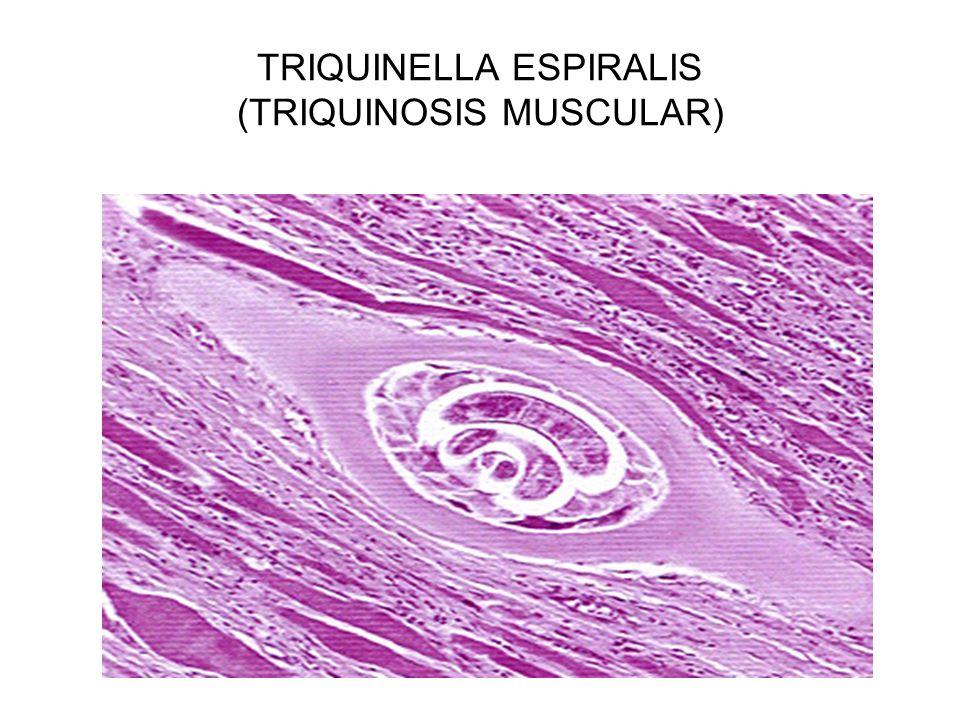 TRIQUINELLA ESPIRALIS (TRIQUINOSIS MUSCULAR)