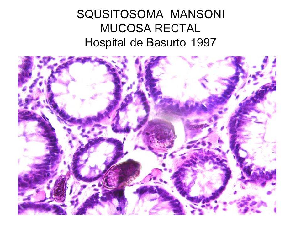 SQUSITOSOMA MANSONI MUCOSA RECTAL Hospital de Basurto 1997