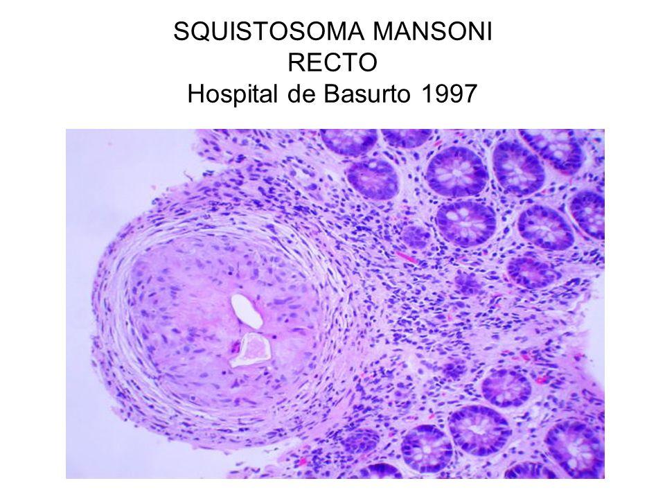 SQUISTOSOMA MANSONI RECTO Hospital de Basurto 1997