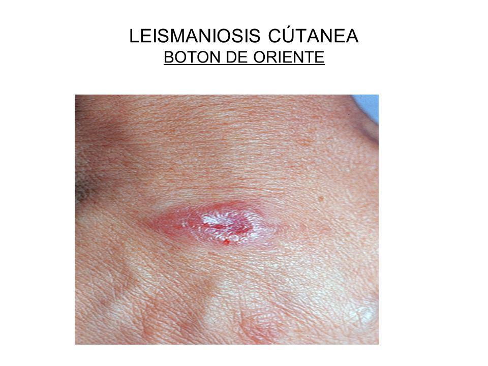LEISMANIOSIS CÚTANEA BOTON DE ORIENTE